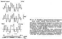 Фиг. 2. Профиль интенсивности магнитного поля через хребет Хуан-де-Фука