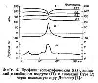 Фиг. 4. Профили: топографический, аномалий в свободном воздухе и аномалий Буге