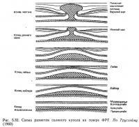 Рис. 5.32. Схема развития соляного купола на севере ФРГ